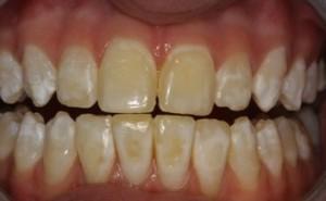 Blanqueamiento Dental en Envigado